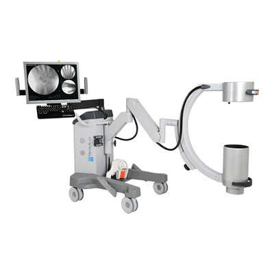 Orthoscan HD Mini C-Arm