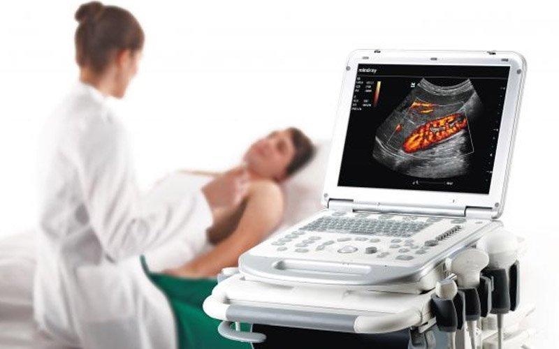 Ultrasound Rentals